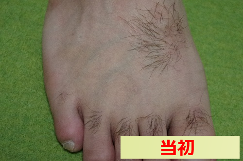 足の指毛 脱毛