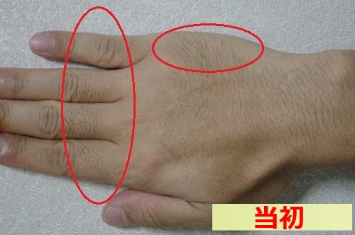 手の指 甲 脱毛