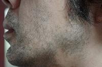 脱毛オタク